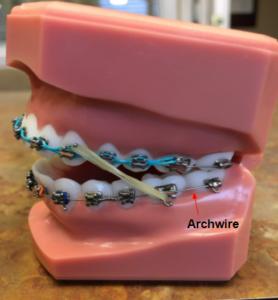 Archwire